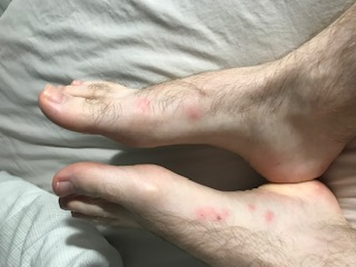 Bed Bug Bites On Feet