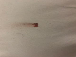 Bed Bug Stains On Sheets